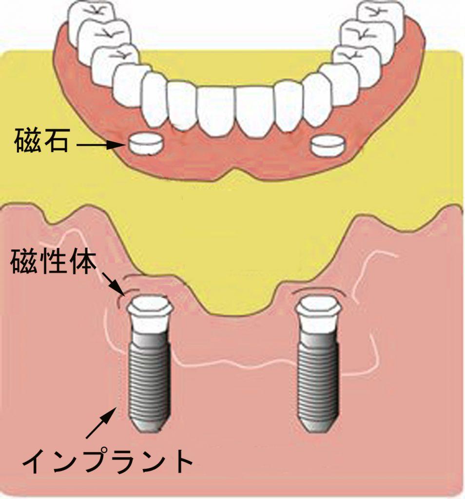 インプラント義歯のしくみ