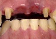 前歯のブリッジ治療