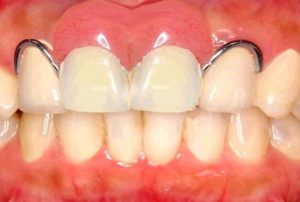 前歯の入れ歯(義歯)